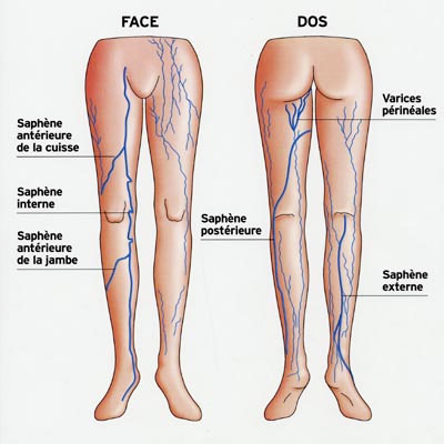 Se è possibile guarire un varicosity di gambe