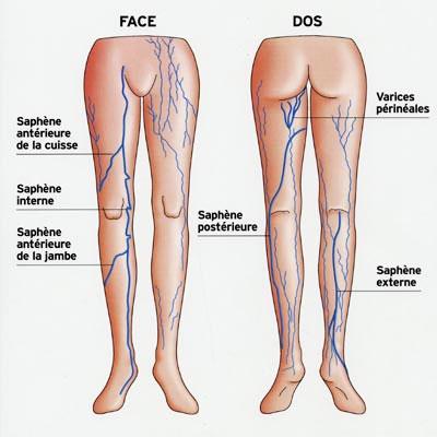 operation varices saphene
